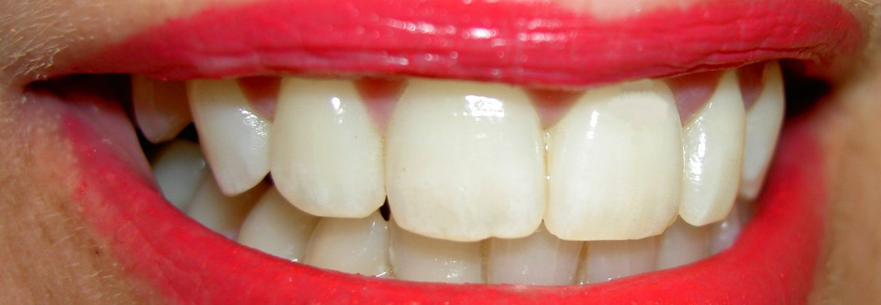 dental implant in North Lauderdale